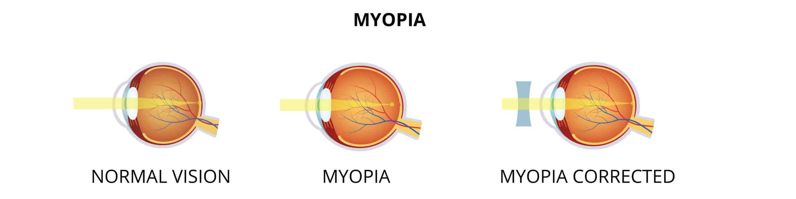 Myopia - Kurzsichtigkeit