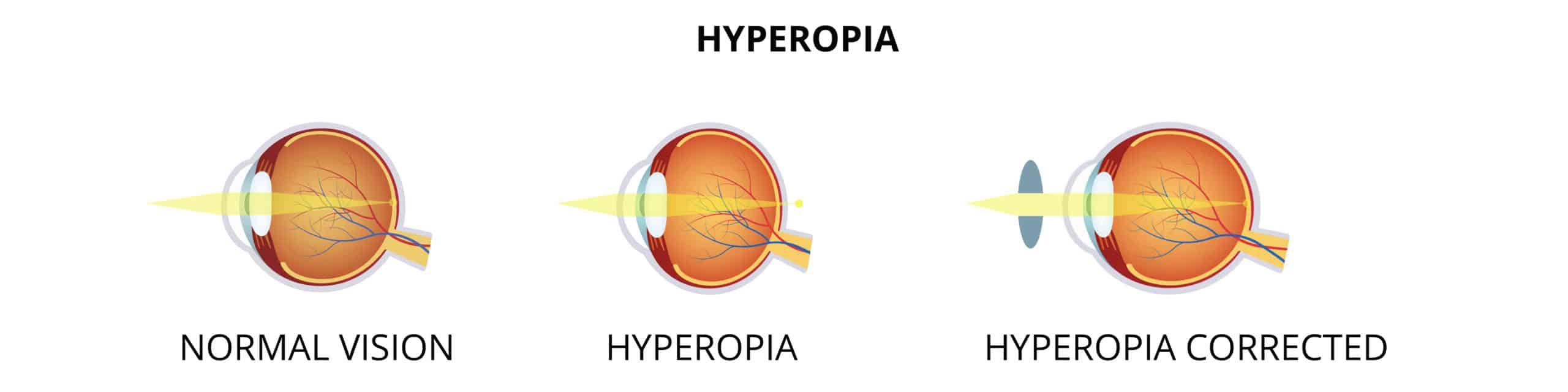 Weitsichtigkeit - Hyperopia