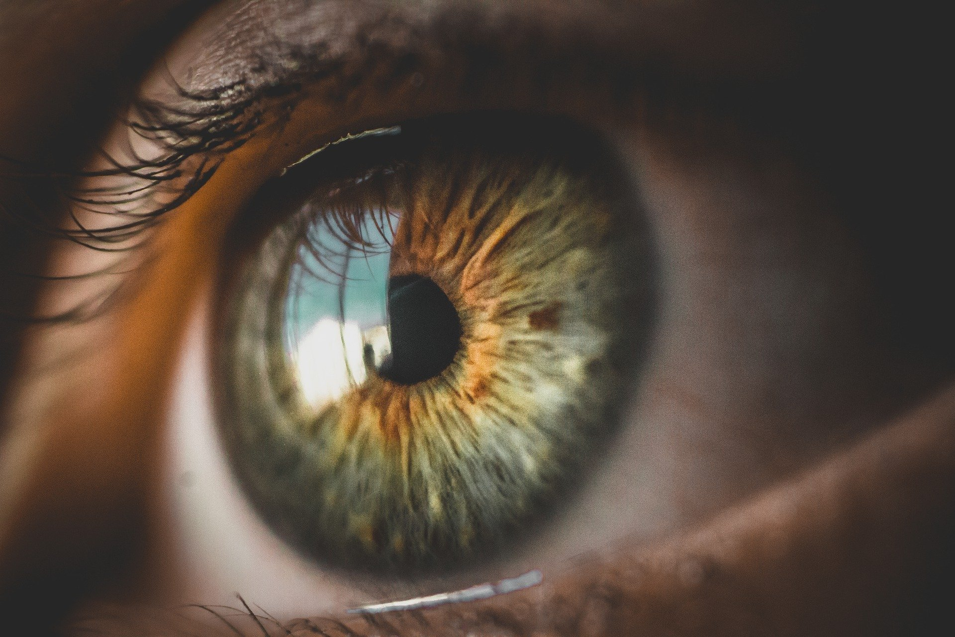 Gefährliches Licht: Sonnenbrand im Auge